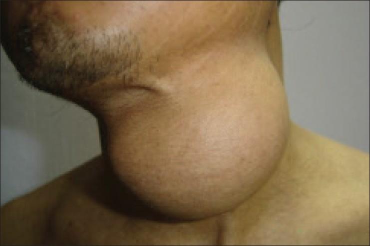 Thyroglossal duct cyst: Unusual presentation in an adult Ramalingam