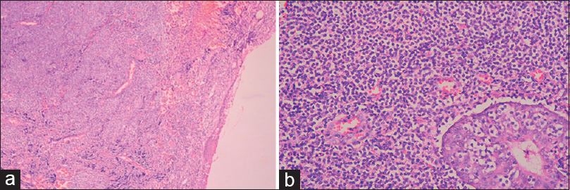 Figure 2: Submucosal nodular growth rich in small sized neoplastic lymphoid cells at places infiltrating the submucosal gland (lymphoepithelial lesion). (a) - ×10, (b) - ×200