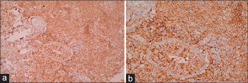 Figure 3: Neoplastic lymphoid cells showing diffuse and strong positivity for (a) CD20 and (b) Bcl-2 protein